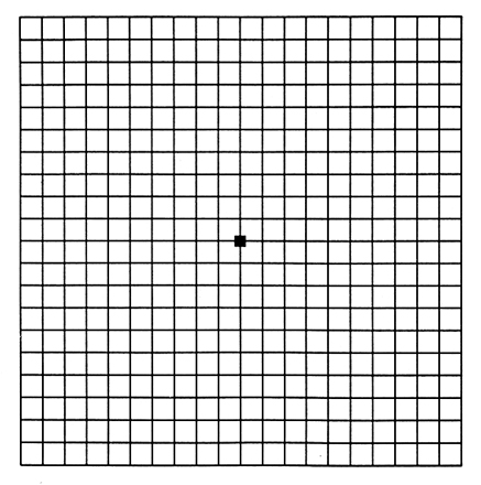 graphic relating to Printable Amsler Grid named Amsler Grid - Eccarius Eye Medical center